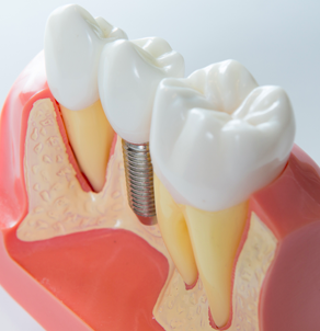 Dental Implants & Periodontal Surgery - Michigan OMS in Metro Detroit - procedures-1